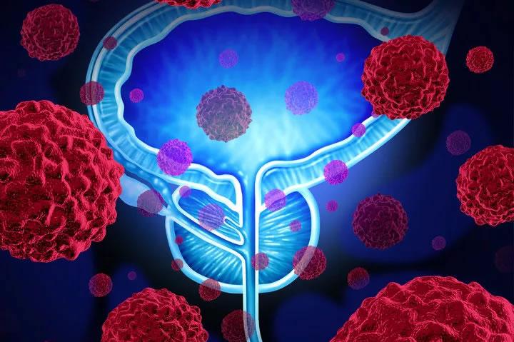 cancro_prostata